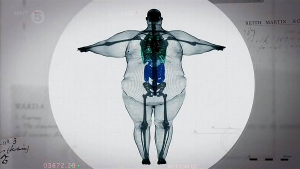 """Eye-opening X-ray of a 900 pound man. Apparently no one is """"big-boned"""". Take care of yourself. #health #science http://t.co/VcGe7ozNoM"""