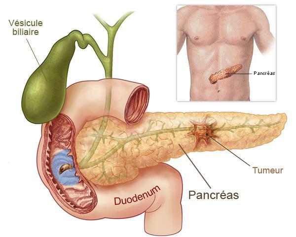 pancreas problems : anti steroids ad, Human Body