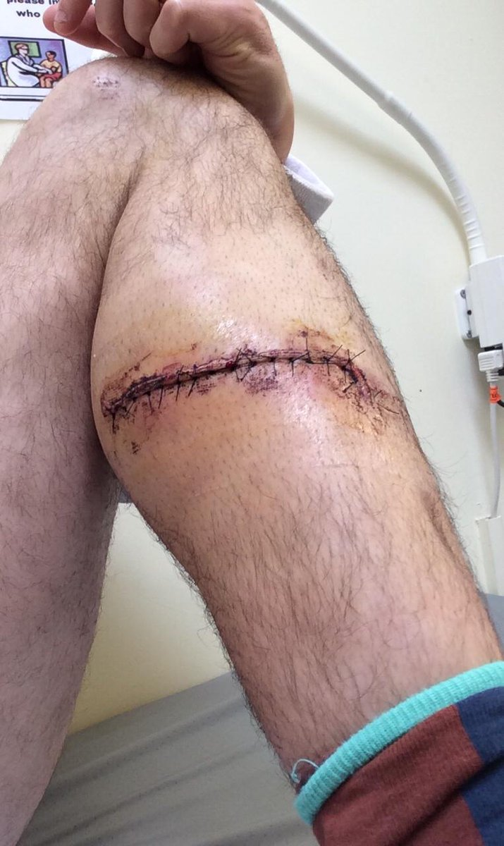 Leg is healing up nicely, just a scratch
