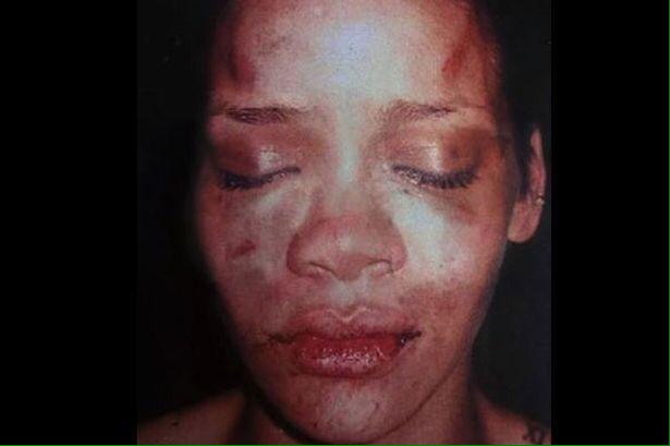 "Does this to a woman's face.  Has an army of female fans rush to his defense.  Writes ""These hoes ain't loyal."" http://t.co/Yfi5ZX0bwa"