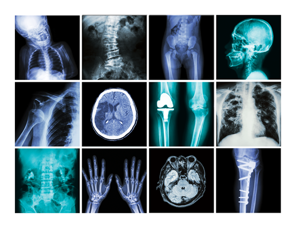 The surprising dangers of CT scans and X-rays: http://t.co/zWm2DTlUaS #cancer #health http://t.co/I9LKcIxtFi