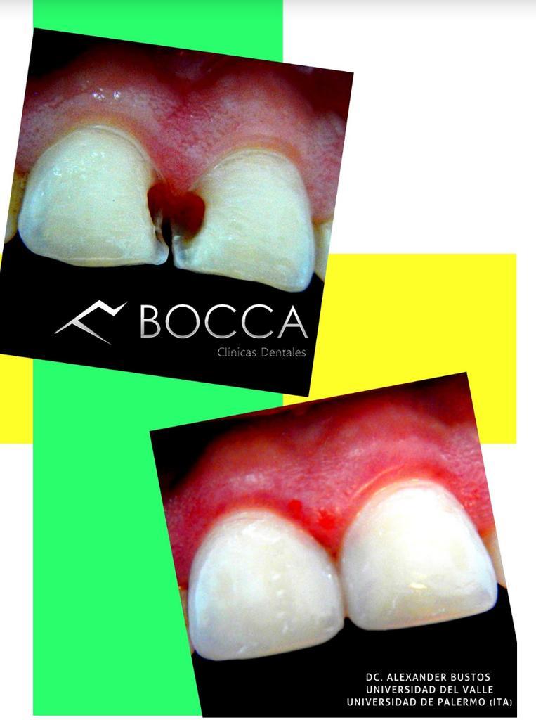Resinas de alta estética. .. Otro tratamiento estrella ofrecido por nuestro equipo de profesionales #boccaclinicasd http://t.co/Q6DFfQBDNG