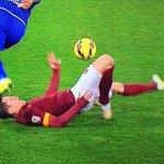 Image impressionnante de la double entorse (cheville et genou) de Juan Manuel Iturbe face à Empoli ! http://t.co/mJb4d6VpOJ