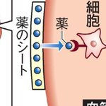【New】心臓に「貼り薬」で血管再生 副作用を克服 http://t.co/7DaZyELh3R http://t.co/HptVd95Ezc