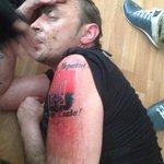 """Вояка """"Правого сектора"""" попал в плен. Кирпичом пытался стереть наколку - не помогло. #Донбасс http://t.co/eFL3z5vM9K"""