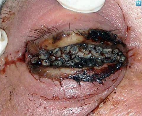 maggots in breast - photo #39