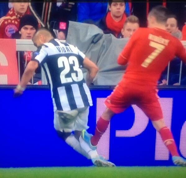 BG4DuP5CEAEzKPZ Should Franck Ribery have been sent off for studding Arturo Vidal?