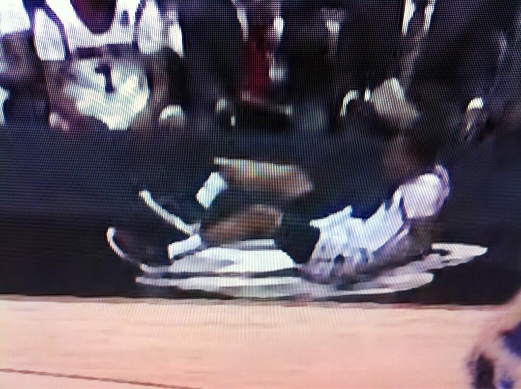 Here is a picture of Kevin Wares injury. The picture is very graphic. http://t.co/dCHaGKtqTz