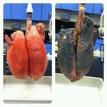 Tau gitulooo RT @nicodemus_refo RT @9GAG Non-smoker and smoker lungs http://t.co/4MC0ZAUGJ2
