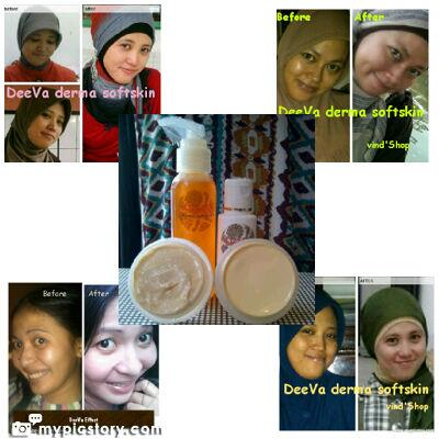 @MauJualBeli DeeVa derma soft skin Distributed Cream Perawatan Kulit Wajah dan Badan pin:22DA0E43 , HP:083830079066 http://t.co/bCMKXPskyh