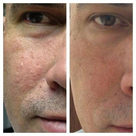Not just for women. #Skincerity is great for men, shaving rash & sun damage men's skin puts up with a lot! http://t.co/w3UDew6yFl