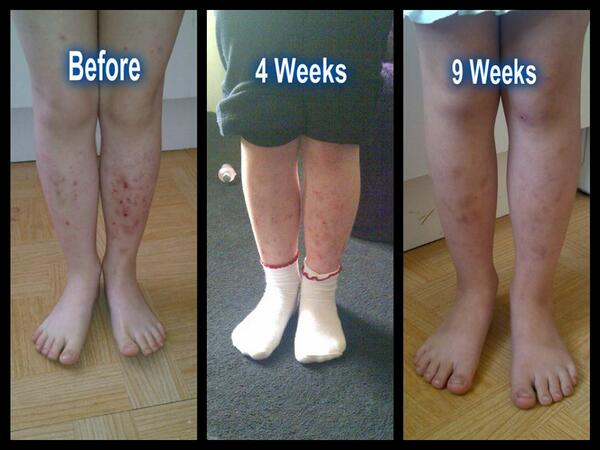 Look at the difference Skincerity can make. Message me for details. http://t.co/TzgVauP8rL