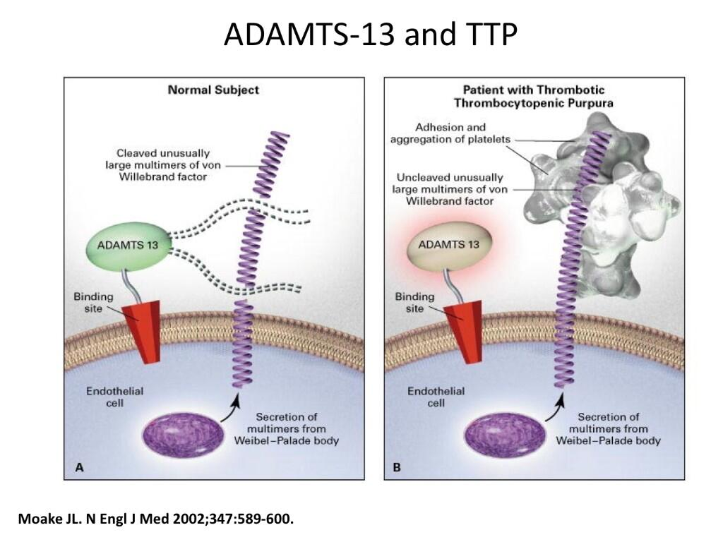 ADAMTS-13 and Thrombotic Thrombocytopenic Purpura (Dr Radakrishnan/ ASN BRCU 2012) #ASNBRC #Nephpearls http://t.co/0ijw1JrNfB
