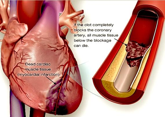 RT @ReviewNursing: Myocardial Infarction (MI) http://t.co/KvYm8i4EXk
