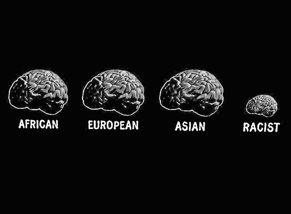 Racists were right, people's brains ARE different ☛ http://t.co/XWFIN58TCx #chart