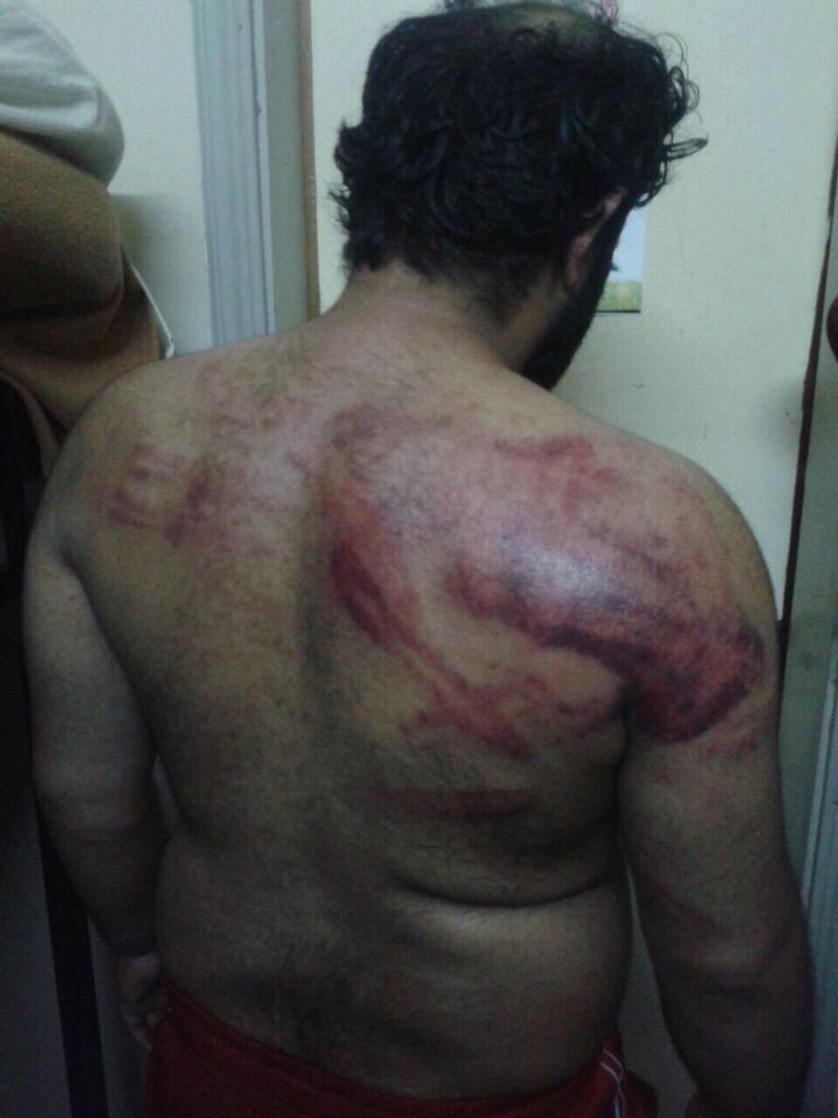 أثار التعذيب على اجسام سجناء جو الذين تجاهلتهم النيابة العامة ببيانها الذي أشار لإصابة الشرطة فقط- لا عدل في #البحرين http://t.co/RImAhZhRuo