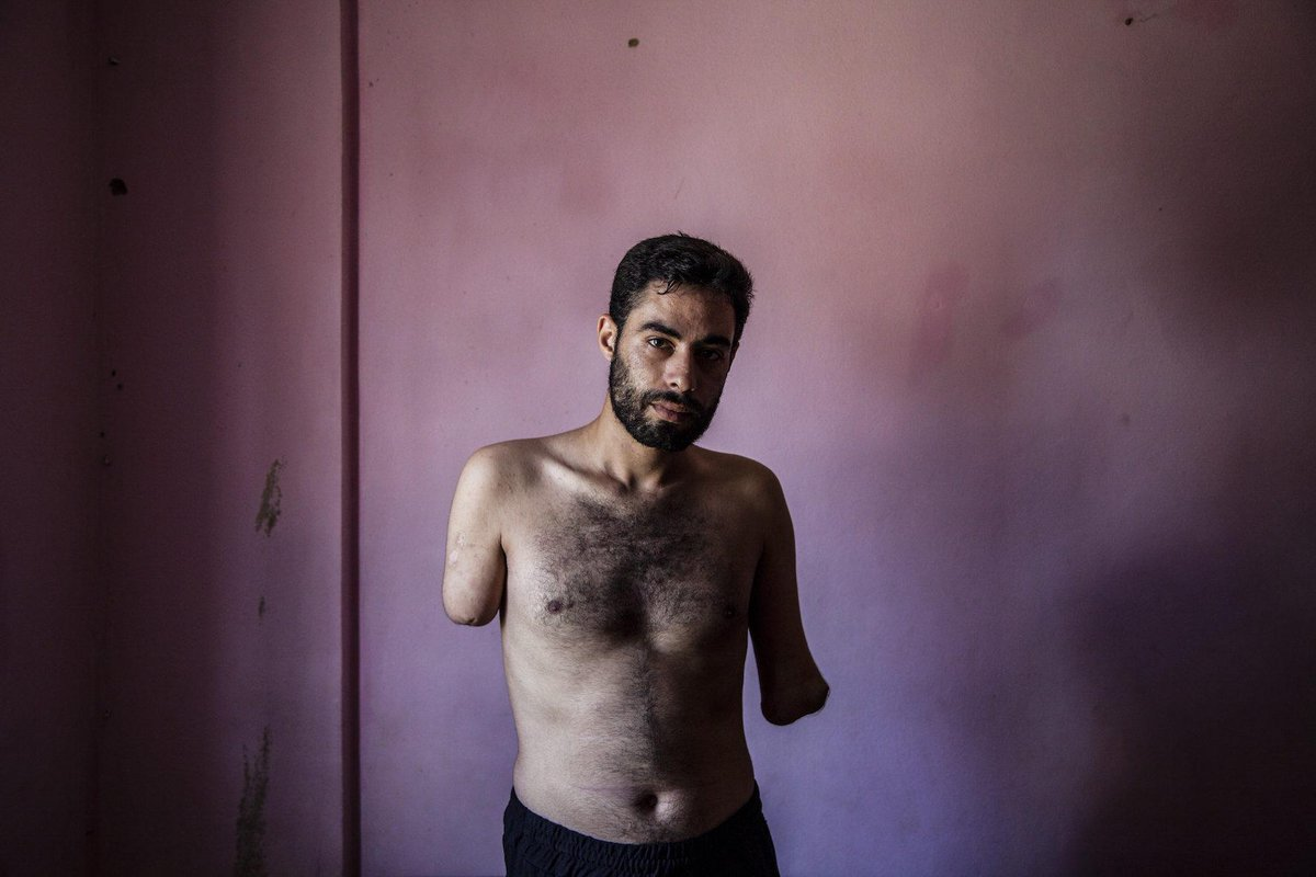 Young father Mohammed hopes to resettle in Denmark & have prosthetics fitted #Syria http://t.co/9cjHAAu9fm http://t.co/1GHeSJxXly @refugees