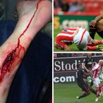 WARNING GRAPHIC CONTENT: The full extent of Figueroas horror challenge on Stephen Ireland http://t.co/UDC3nNIqkv http://t.co/wos2oN7YK1