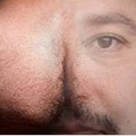 Nuovo dubbio domina il web: è un culo o la faccia di Salvini? #TheDress #MaiConSalvini http://t.co/eKiXNWyjhk