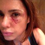 Así estoy ahora luego de la brutal agresión y amenazas de muerte q sufrí hoy en la vía pública de parte de una mujer. http://t.co/xhq8e6fXu3