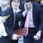 U.S. ambassador to South Korea Mark Lippert was attacked by a man with a razorblade in Seoul http://t.co/M96DC6p7Z7 http://t.co/4nUSdpIjat