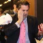 BREAKING: U.S. ambassador attacked in South Korea http://t.co/MQBJ4vO8a4 http://t.co/IDfM2FxQ4r