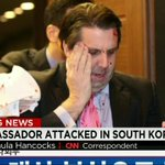 U.S. ambassador to South Korea Mark Lippert was attacked with a small razor blade, police say. http://t.co/TUdiSMSn2J http://t.co/dpC32FPR8G