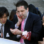 State Dept.: US Amb. Lippert attacked during speech in South Korea: http://t.co/luSDNFnVAF http://t.co/Q5O20OFIKL