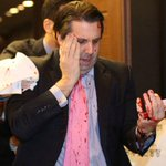 The US ambassador to South Korea was attacked by a man wielding a razor http://t.co/XmEOtv87GW http://t.co/kql7zLJByD