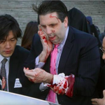 U.S. Ambassador Mark Lippert reportedly slashed in face with razor blade; suspect arrested http://t.co/QhoG1RkFQu http://t.co/lO8tKQptDl