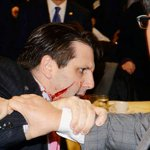 شاهدوا صورة السفير الأمريكي في سيؤول بعد تعرضه لهجوم بآلة حادة http://t.co/5i7VZGqnOr http://t.co/TdmtfrbqWL