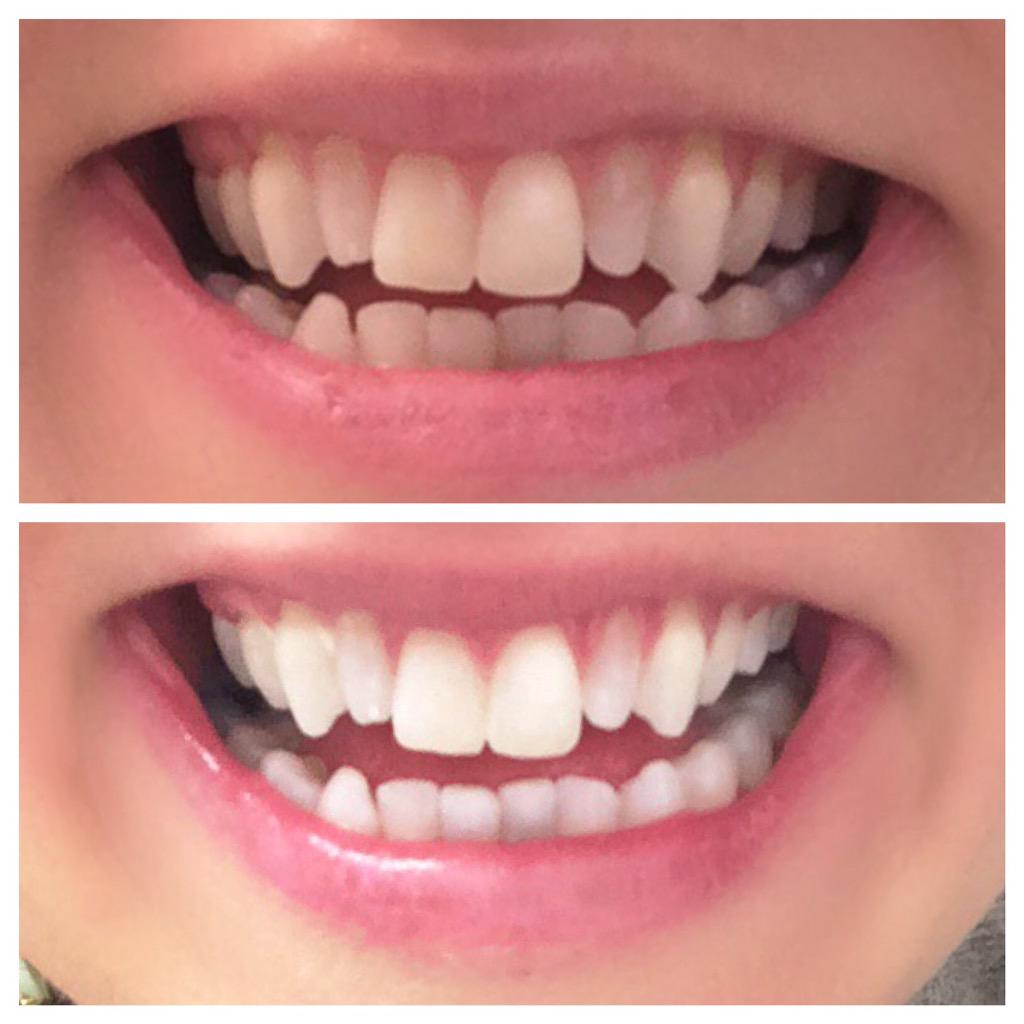 My teeth whitened in 1 hour with @DrSherriWorth on Tuesday. Isn't the transformation crazy!? I love it. http://t.co/O2exhcIpU9