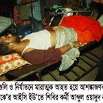 RIP #HumanRights in #Bangladesh! http://t.co/aiHrM87KHd This #Shibir mans sense isnt back yet, 30 hrs after his beingShot inHead by police