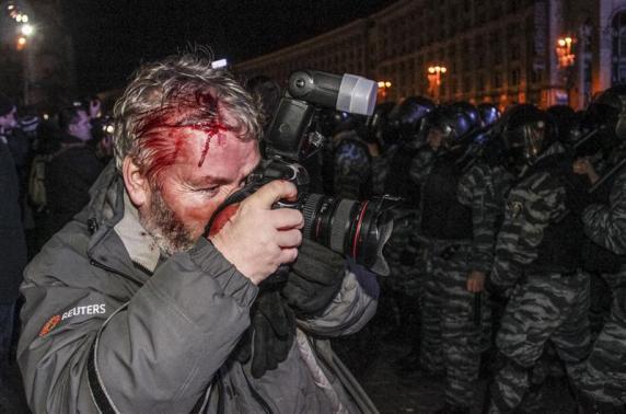 RT @Tanchamovil: PERIODISTA de VERDAD @Reuters photographer Gleb Garanich keeps working despite being wounded by Ukraine riot police http://t.co/PlziAKiWU7