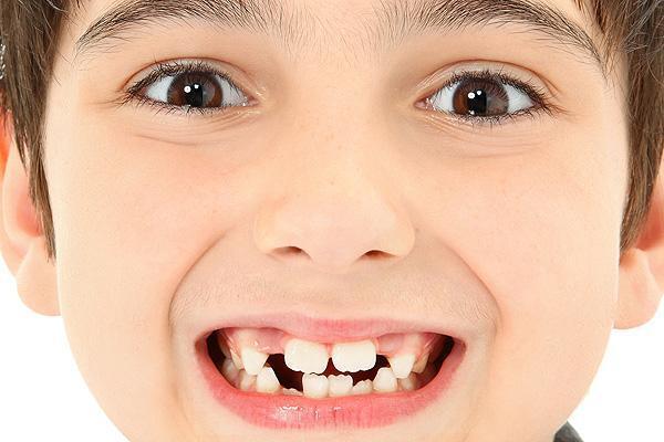 Rata-rata anak akan mulai kehilangan gigi susu di usia 6 tahun. http://t.co/rbOzQyfHyw