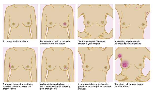 RT @BCCare: It's not just lumps and bumps to be aware of. This guide will help you note any changes #EastEnders http://t.co/QrntdHoRLj