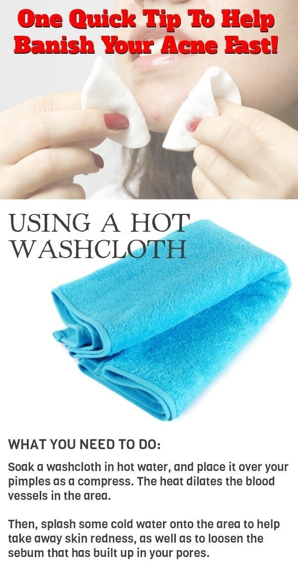 Quick Tip To Banish Acne Fast! http://t.co/nmavaHpLhx