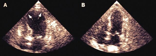 Sindrome di tako tsubo - broker hearts syndrome @imagencardiaca http://t.co/HraA3ereRA