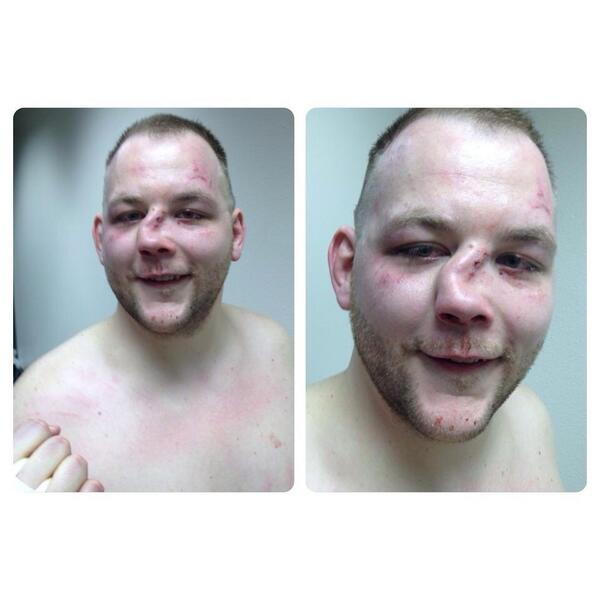 This is what happens when you don't train for fights. #mma #isitbroken http://t.co/XnYdX25ASS