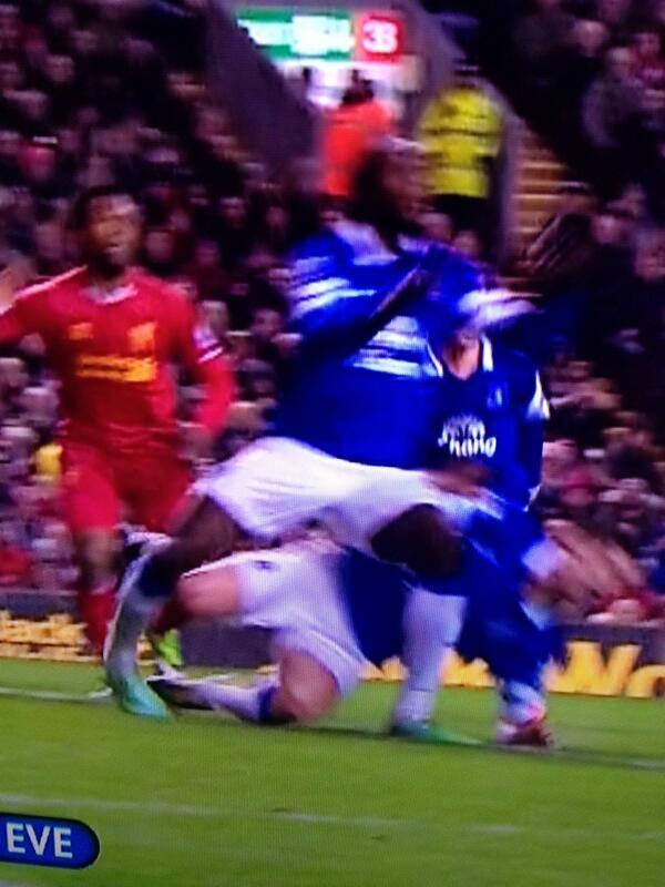 BfF vVJIYAAq7l2 Shocker! Gareth Barry injured Everton team mate Romelu Lukaku at Liverpool