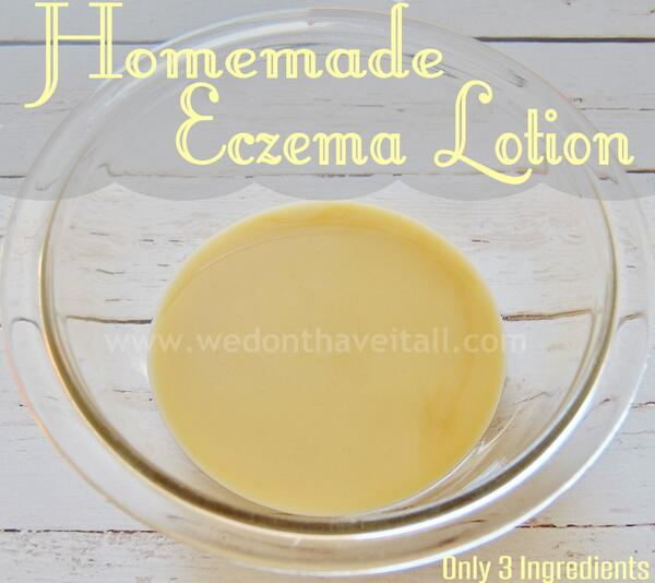 #Homemade #Eczema Lotion #Recipe | Only 3 Ingredients! - http://t.co/hWXK5NA9mj via @We_HaveItAll http://t.co/0SOtSu5IB3