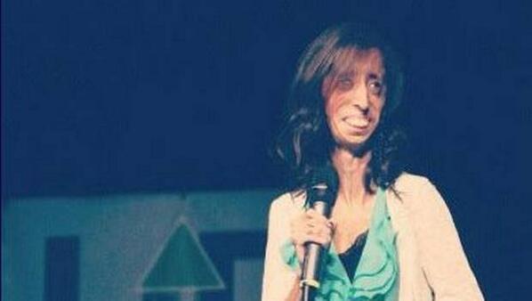 """La han llamado """"la mujer más fea del mundo"""", pero su mensaje tapó la boca de todos: http://t.co/3v1y2eVbM0 http://t.co/kqWQnWnxzH"""
