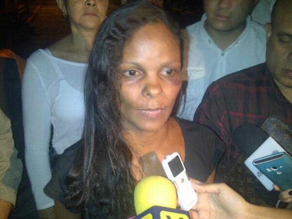 """""""@nelzay: """"@RPolicial: Venezuela presenció su tortura, pero una fiscalía corrupta la imputa por LESIÓN A GNB  :: http://t.co/13QC31Neez"""""""