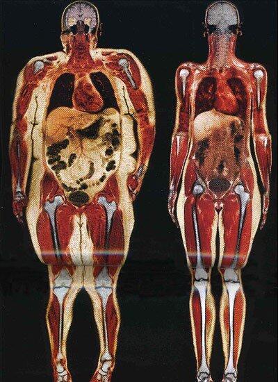 ภาพสแกนอวัยวะภายในของ ญ หนัก 113 & 54 กก. สังเกตไขมัน(สีขาว)ในช่วงท้อง & ลำตัว หัวเข่าที่บิดเบี้ยวเพราะรับ นน. #if816 http://t.co/M70RpDQjJN