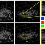 What happens in the brain when blind people learn to see with sound http://t.co/YR6onC4k6v http://t.co/1YtuzasbC2