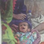 A most disturbing pic - of a malnourished baby in Thar also born prematurely (by Fahim Siddiqi for Dawn) http://t.co/QSx8RJqmRW