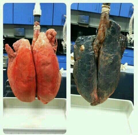 Pulmones Sanos Vs Pulmones de un fumador. Qué esperas para dejar de fumar? http://t.co/mNdnQJOvpM