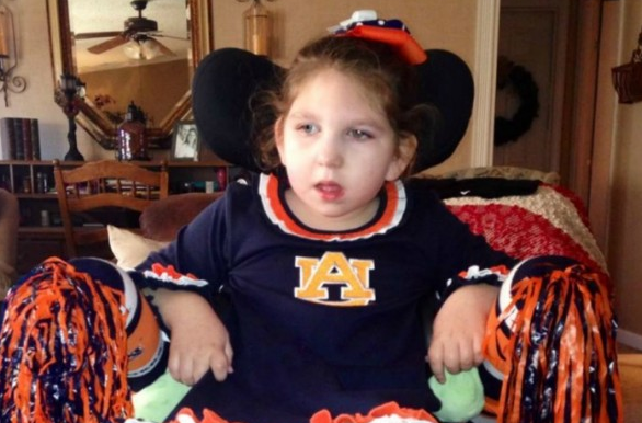 Abbie lives in Auburn. She has Olivopontocerebellar Atrophy. She needs a wheelchair van. http://t.co/fjs2vGCH9W http://t.co/qWg35If5rh""