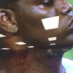 Pineda appears to have found a new spot for his pine tar. http://t.co/z5EyRVetOg