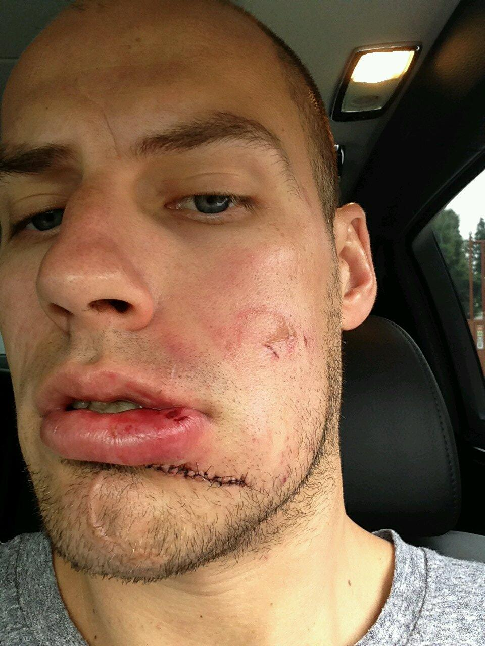 RT @ChrisGetzlaf: One of the toughest guys I know #warrior #ducks #playoffperformer #saskboy http://t.co/ieVIthEx8D